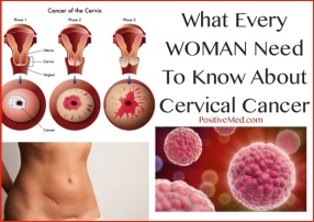 Cervical-Cancer